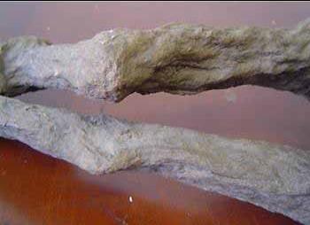 mummy legs